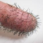 閲覧注意!男性の自己流ヒゲ脱毛は超危険!埋没毛や炎症の原因に!